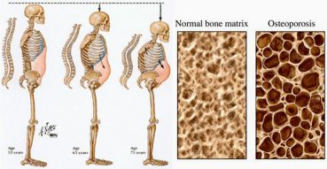 Fosamax (Alendronate) Tablets for Osteoporosis Treatment: Uses and Side Effects