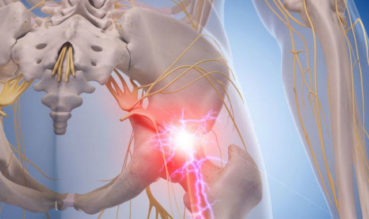 Sciatic Nerve Pain: Symptoms, Causes, and Treatment