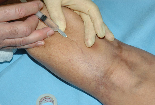 Sclerotherapy Treatment for Varicose Veins: How Does It work?