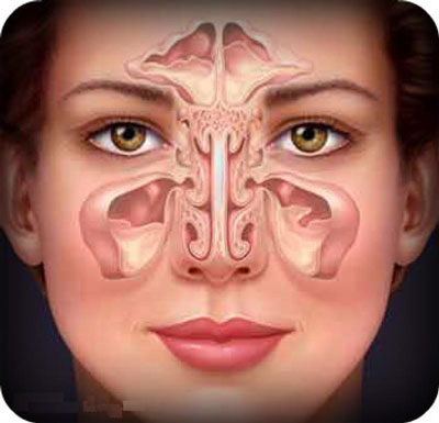 sinus-allergy