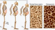 Fosamax Alendronate for osteoporosis