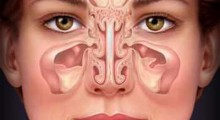 sinus-allergy