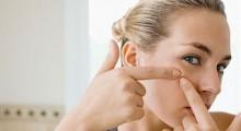 squeezing-acne
